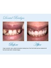 Dental Bridges - Smile Speak Dental Clinic