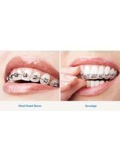 Braces - Smile Speak Dental Clinic