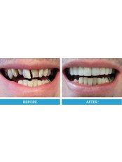 Composite Veneers - Smile Speak Dental Clinic