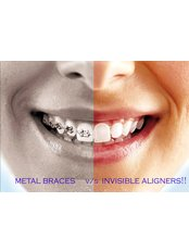 Clear Braces - Smile Speak Dental Clinic