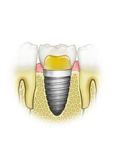Restoration of Implants - Dental Speciality Clinic