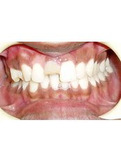 PFM Crown - Dr Chopra's Implant & Orthodontic Clinic