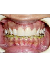 Veneers - Dr Chopra's Implant & Orthodontic Clinic