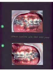 Braces - Dr Chopra's Implant & Orthodontic Clinic