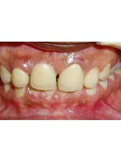 Dental Bridges - Dr Chopra's Implant & Orthodontic Clinic