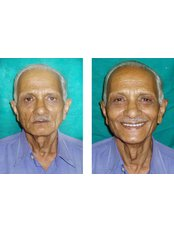 Dentures - Dr Chopra's Implant & Orthodontic Clinic