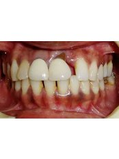 Dental Crowns - Dr Chopra's Implant & Orthodontic Clinic