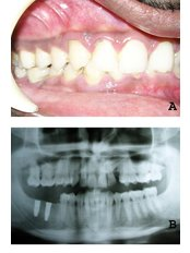 Dental Implants - Dr Chopra's Implant & Orthodontic Clinic