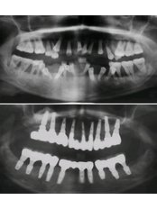 Keyhole Dental Implants - Stunning Dentistry
