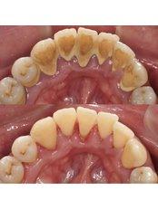 Bad Breath Treatment - Stunning Dentistry