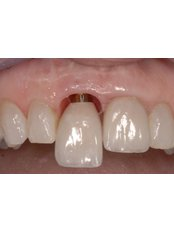 Immediate Implant Placement - Stunning Dentistry