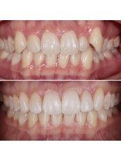 Invisalign™ - Stunning Dentistry