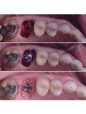 Bone Graft - Stunning Dentistry