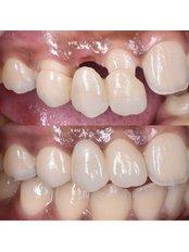 Dental Bridges - Stunning Dentistry