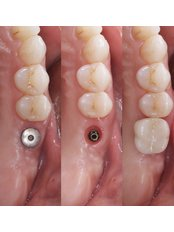 Single Implant - Stunning Dentistry