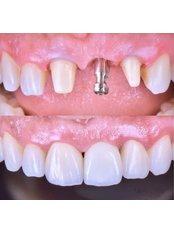 Restoration of Implants - Stunning Dentistry