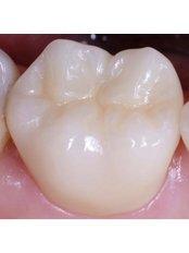 Porcelain Filling - Stunning Dentistry