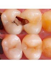 Endodontist Consultation - Stunning Dentistry