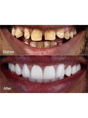 Permanent Crown - Stunning Dentistry
