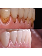 Teeth Whitening - Stunning Dentistry