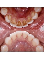 Air Abrasion - Stunning Dentistry