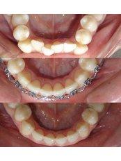 Metal Braces - Stunning Dentistry