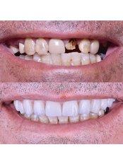 CAD/CAM Dental Restorations - Stunning Dentistry