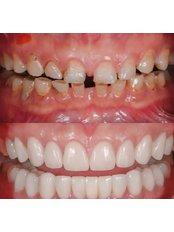 Full Mouth Rehabilitation - Stunning Dentistry