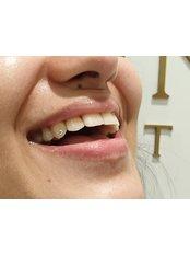 Tooth Jewellery - Stunning Dentistry