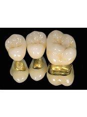 Gold Filling - Stunning Dentistry
