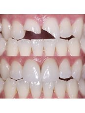 Chipped Tooth Repair - Stunning Dentistry