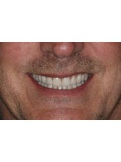 Jaw Contouring - Stunning Dentistry