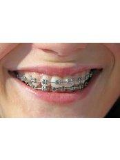 Braces - Dentafix Multispecialty Dental Clinic