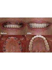 Immediate Implant Placement - Dentafix Multispecialty Dental Clinic