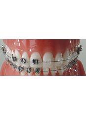 Ceramic Braces - Dentafix Multispecialty Dental Clinic