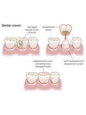 Dental Crowns - Dentafix Multispecialty Dental Clinic