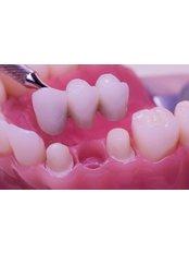 3-Unit Bridge - Dentafix Multispecialty Dental Clinic