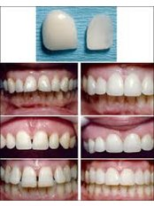 Composite Veneers - Dentafix Multispecialty Dental Clinic