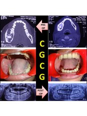 R D DENTAL HOSPITAL & RESEARCH CENTRE - Conservative Management of CGCG