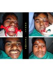 Oral and Maxillofacial Surgery under GA  - R D DENTAL HOSPITAL & RESEARCH CENTRE