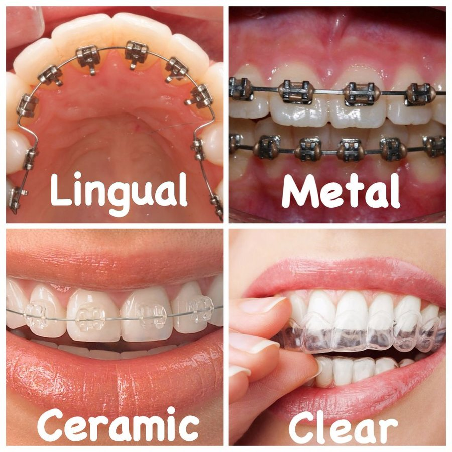 Dr Mathesul Mds Dental Orthodontic Clinics In Pune India