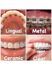 Invisalign™ - Dr Mathesul MDS Dental Orthodontic Clinics