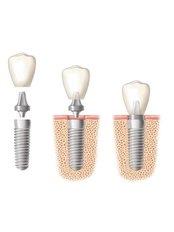 Dental Implant - Dental Tree Jalandhar (Dental Implants & Invisible Braces Specialty Centre)