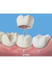Dental Bridges - Thind Dental Clinic