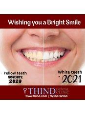 Teeth Whitening - Thind Dental Clinic