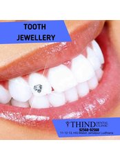 Tooth Jewellery - Thind Dental Clinic