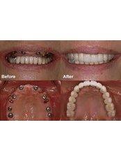 Dental Implants - Thind Dental Clinic