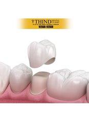 Dental Crowns - Thind Dental Clinic