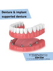 Overdentures - Thind Dental Clinic