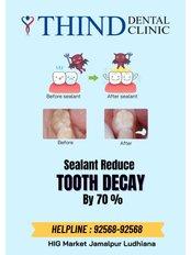 Dental Sealant - Thind Dental Clinic